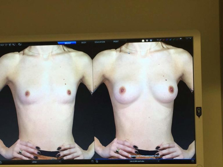 Lena meyer landrut nackt swissliste